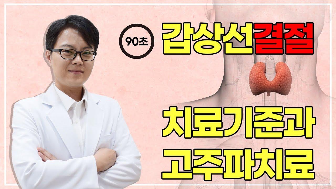 [90초]갑상선결절, 치료기준과 고주파치료