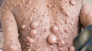 Neurofibromatosis  Treatment!  What is NF?   Cysts, Pimples, Whiateheasds and Tumors