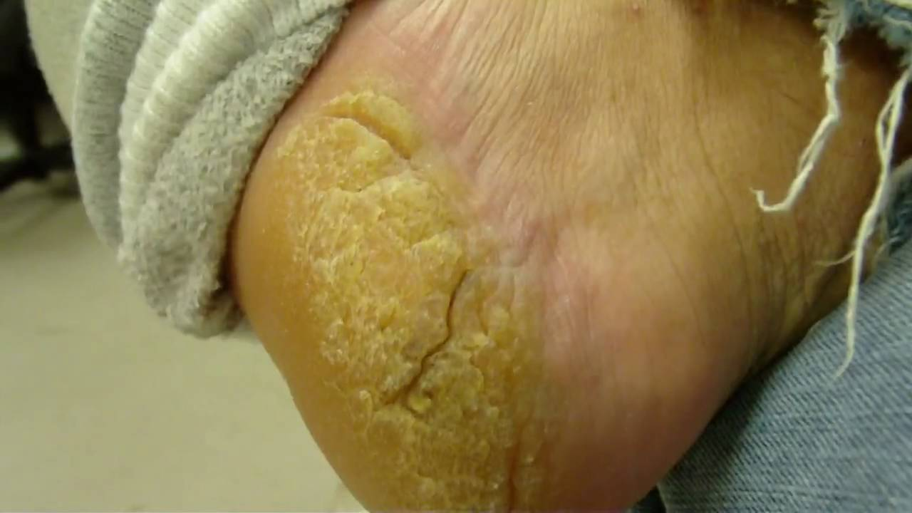 how to get rid of peeling feet overnight