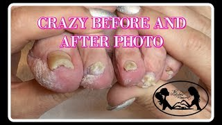 👣Pedicure at Home Elderly Nail Fungus Follow Up Tutorial 👣✔️