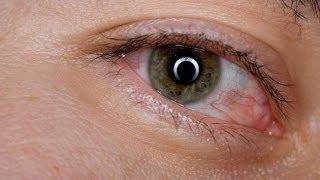 Consejos para los ojos rojos