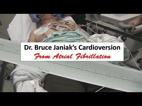 Dr. Bruce Janiak's Cardioversion from Atrial Fibrillation