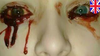 น้ำตาไหลเป็นเลือด สาว 17 เลือดออกแบบคุมไม่ได้