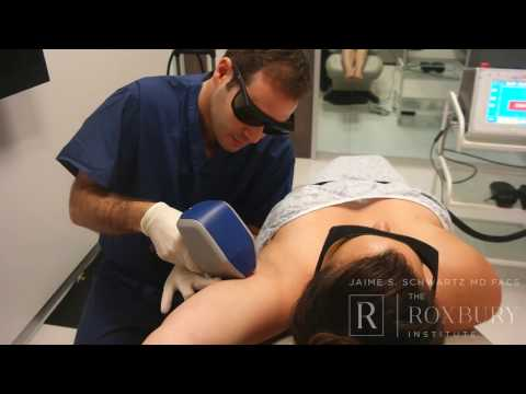 Laser Hair Removal with Pelo