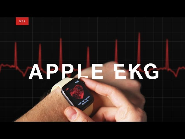 Why doctors are worried about the Apple Watch EKG