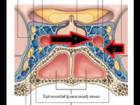 Cavernous sinuses - YouTube