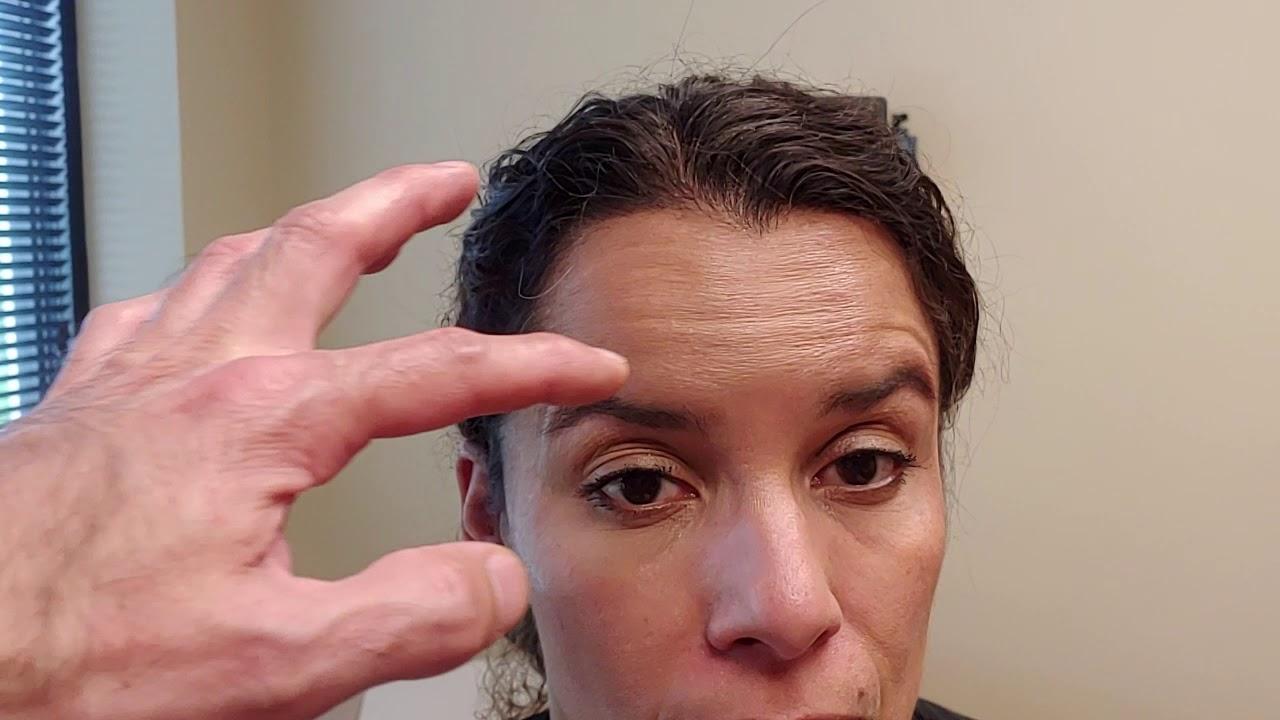 Pre Botox Education