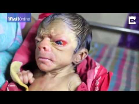 MUST WATCH A New Born Baby Looking Like An 80 Year Old