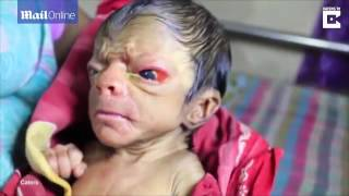 MUST WATCH! A New Born Baby Looking Like An 80 Year Old Man Full Of Back Hair(, 2016-09-29T03:09:08.000Z)