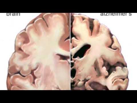 Alzheimer' s Disease Presentation Group 4