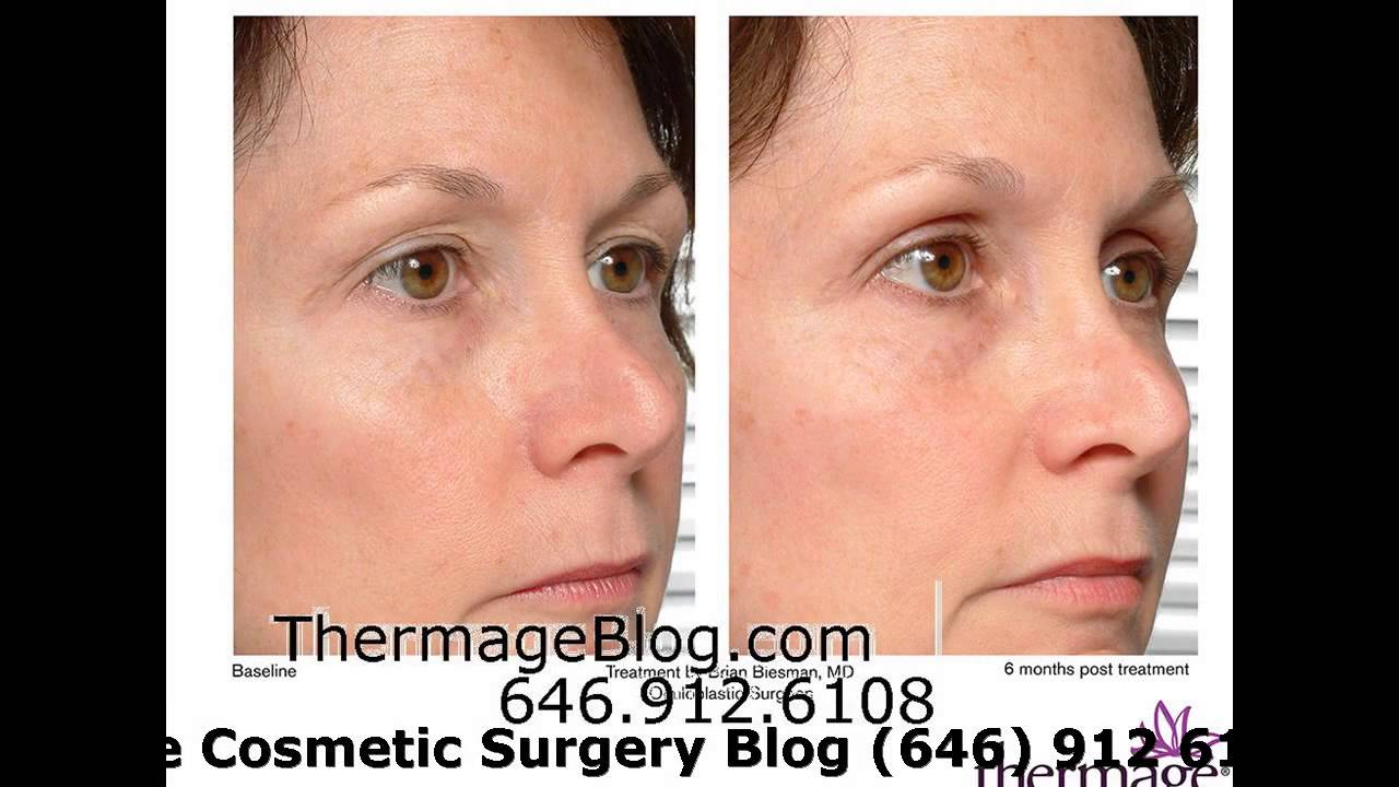 thermage for under eye bags - YouTube