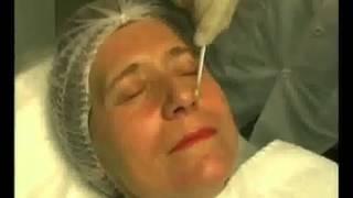 Пилинг химический глубокий видео(http://skinproblem.ru купить натуральные средства от прыщей, демодекоза, нейродермита, экземы, псориаза. Глубокий..., 2012-08-13T18:49:51.000Z)