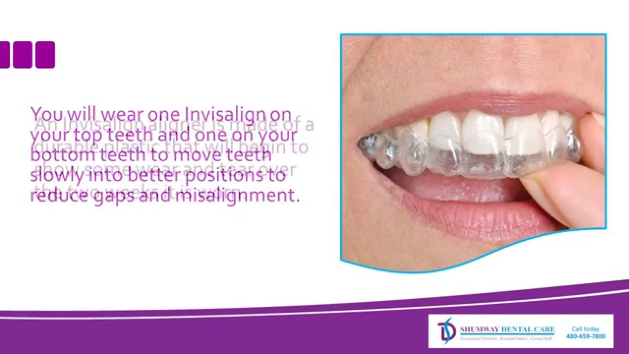 The Visible Difference Between Invisalign and Braces - YouTube