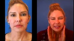 Los Angeles Fractora Before and After Testimonial- Skin Perfect Medical Spa in Whittier