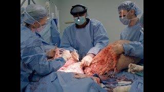 Удаление опухоли - Аномалии тела