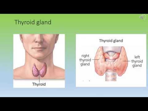Thyroid FNA.