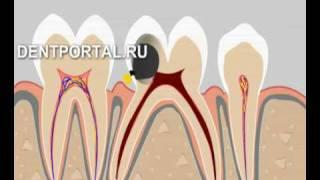 Удаление зубов - хирургическая стоматология(Удаление зубов - хирургическая стоматология., 2008-11-11T01:59:07.000Z)