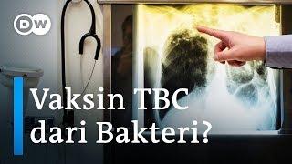 CARA PENGOBATAN TB PARU | EFEK SAMPING OAT (OBAT TB).