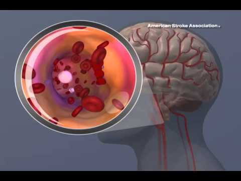 Ischemic Stroke Animation - YouTube - 12.2KB