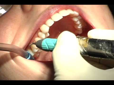 how to get rid of gross taste after dentist