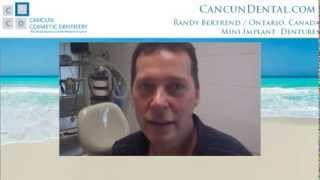 Denture Implants Procedure. Cost explained by Canadian patient at Cancun Dental. Thumbnail