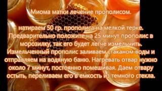 видео Аденомиоз матки: лечение народными средствами и отзывы женщин