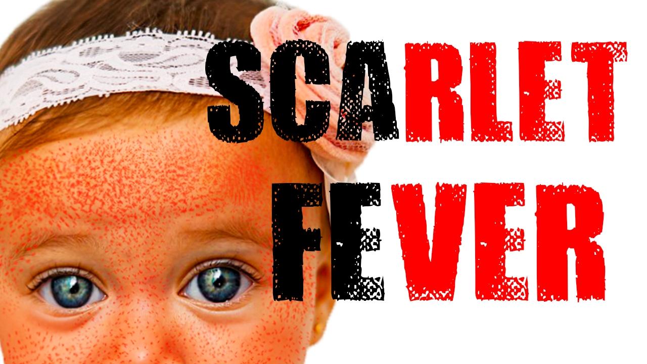 Scarlet Fever - Red Sandpaper Like Rash - YouTube