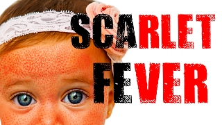 Scarlet Fever - Red Sandpaper Like Rash