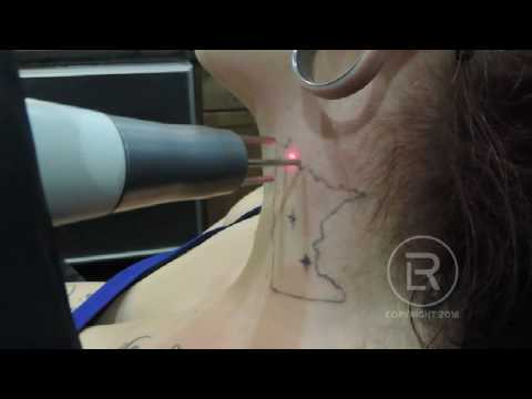mn outline neck session 3 laser tattoo removal youtube