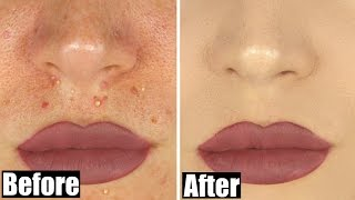 How to Cover an Acne Breakout   STEPHANIE LANGE