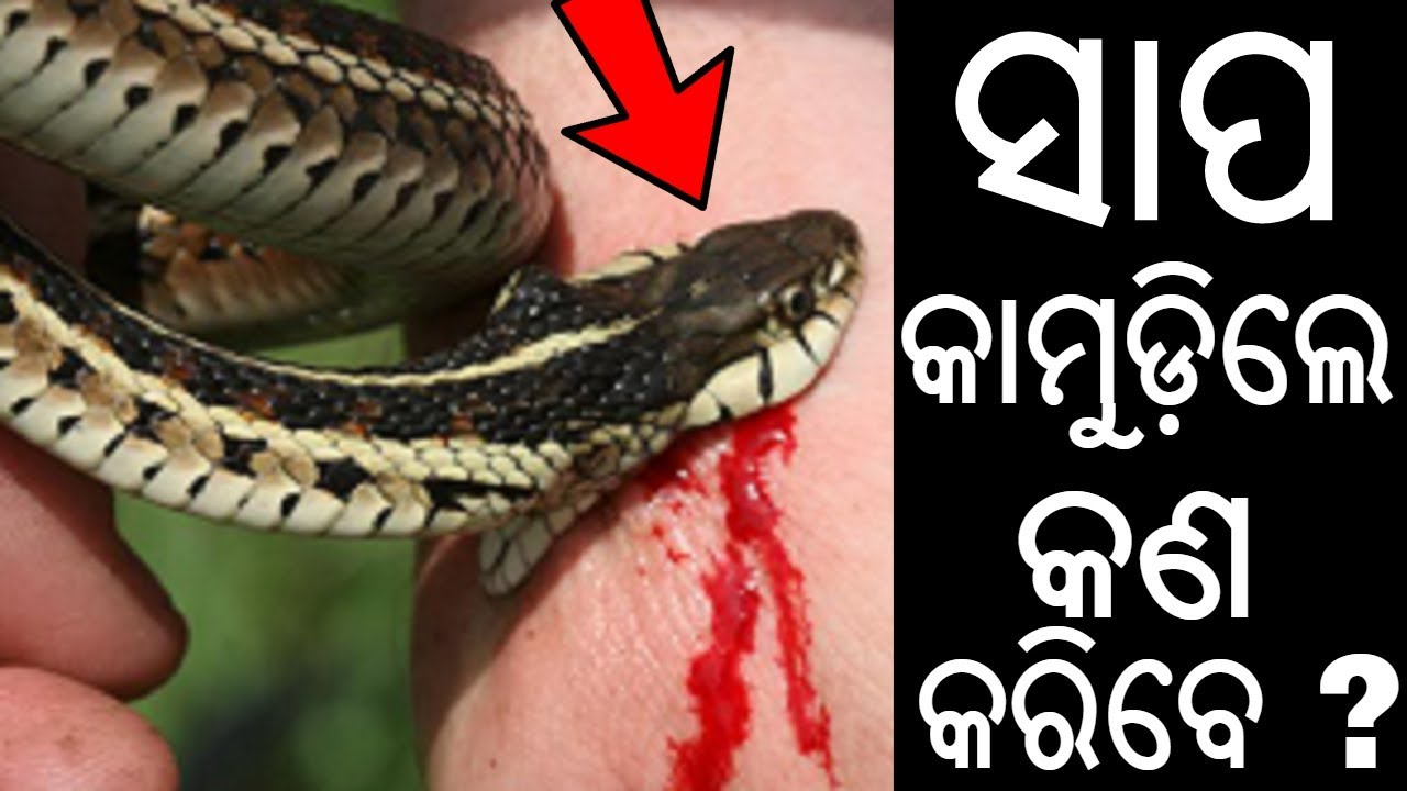 snake bites Snake bites can be life-threatening if the snake is poisonous poisonous snakes found in the united states include rattlesnakes, copperheads.