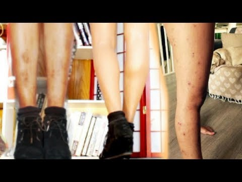 How To Cover Up Spots On Skin - How To Get Perfect Legs In 1 Minute - Inspired By MsGoldgirl