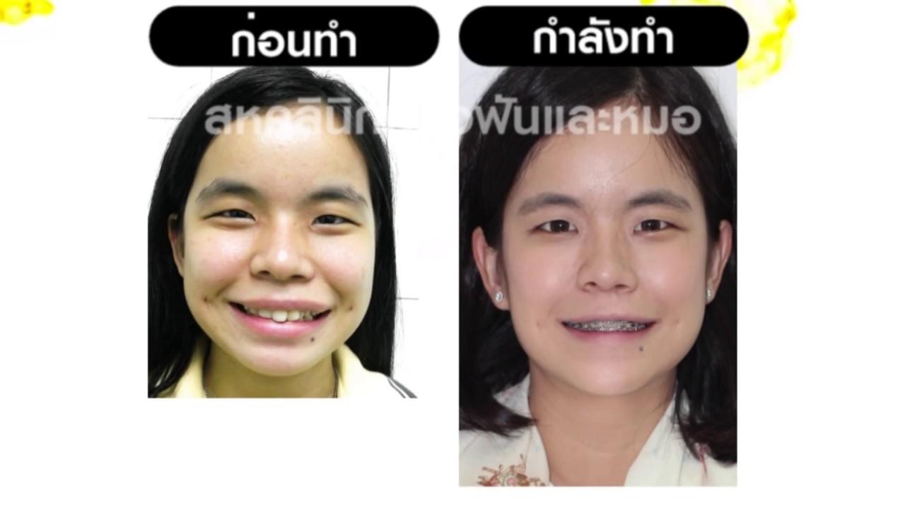 จัดฟัน จัดโครงสร้างใบหน้า - ขากรรไกรเบี้ยว โครงหน้าเบี้ยว โครงหน้าไม่ได้สัดส่วน ฟันซ้อนเกมาก