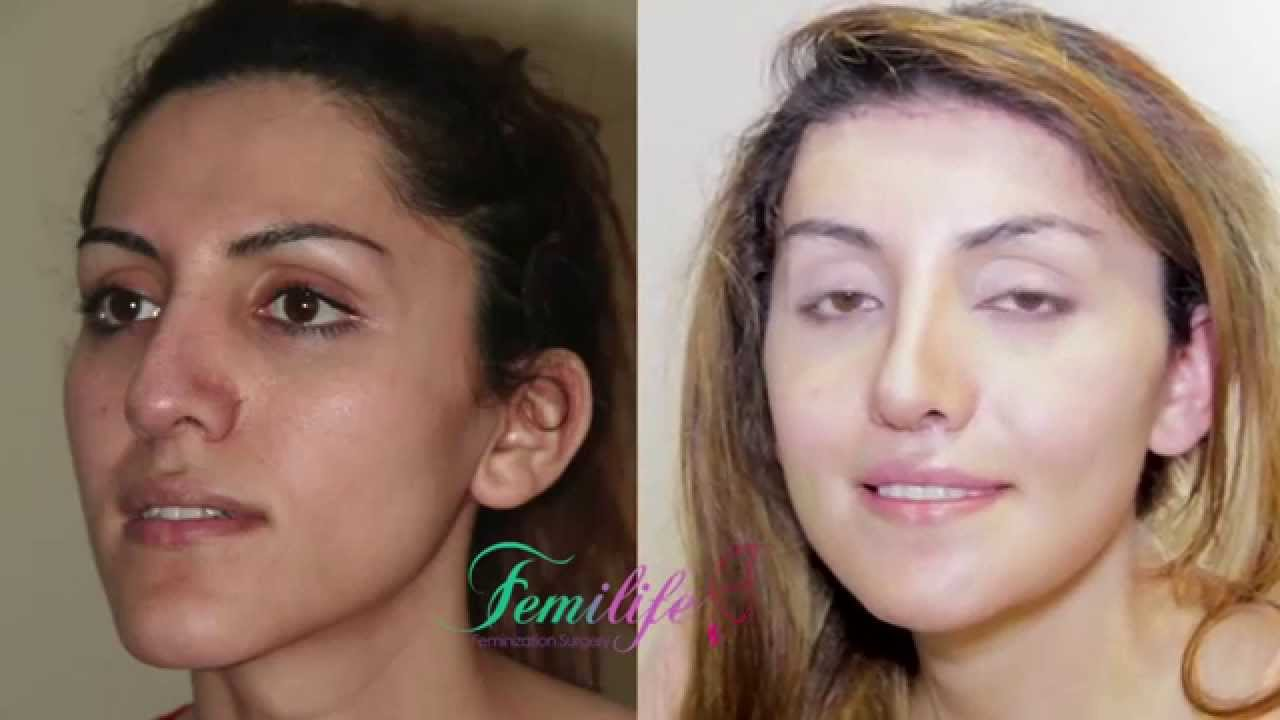 Facial Feminization Result Surgery - Porn Tube-8699