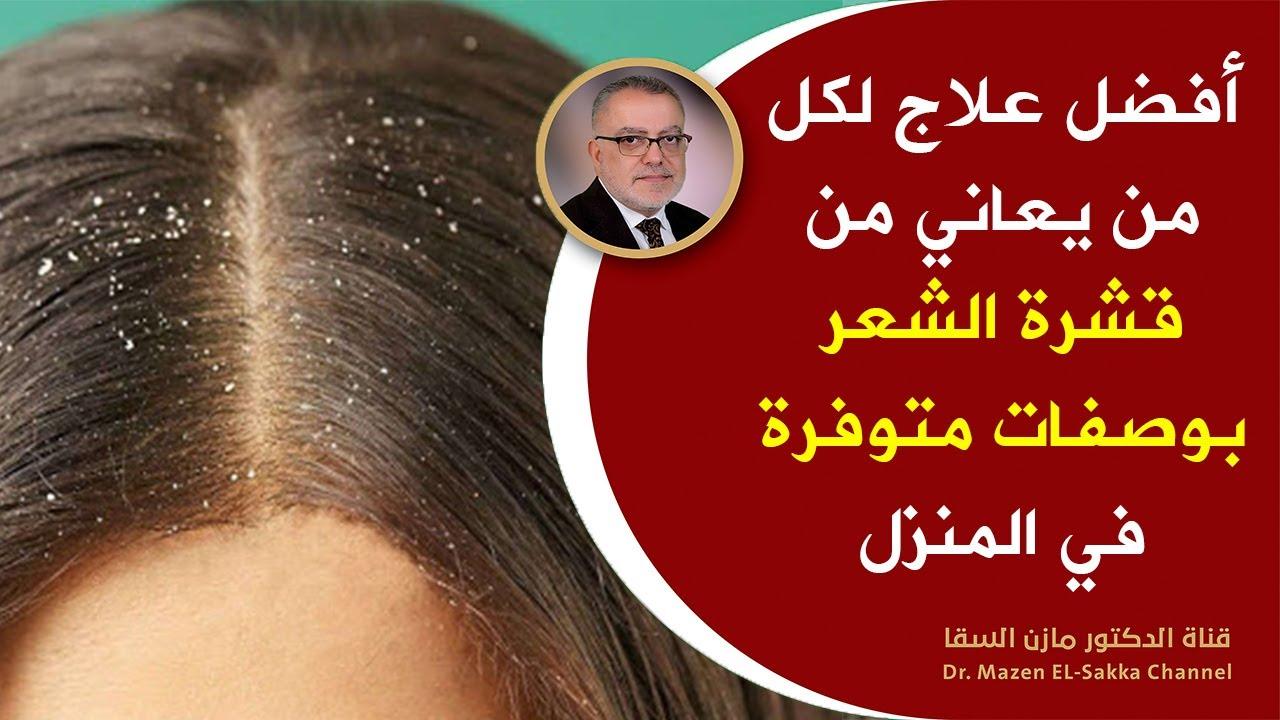 وصفة لإزالة القشرة من الشعر نهائيا