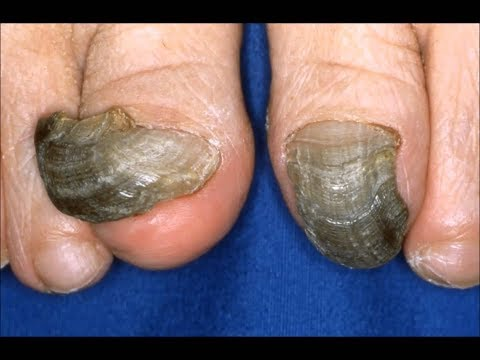 How to Get Rid of Black Toenail Fungus in Half the Time
