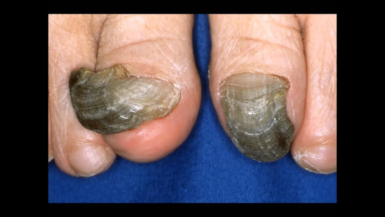 How to Get Rid of Black Toenail Fungus in Half the Time - YouTube