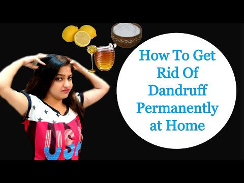how-to-get-rid-of-dandruff-permanently-at-home-|-home-remedy-for-dandruff-and-itchy-scalp|-joyofrims