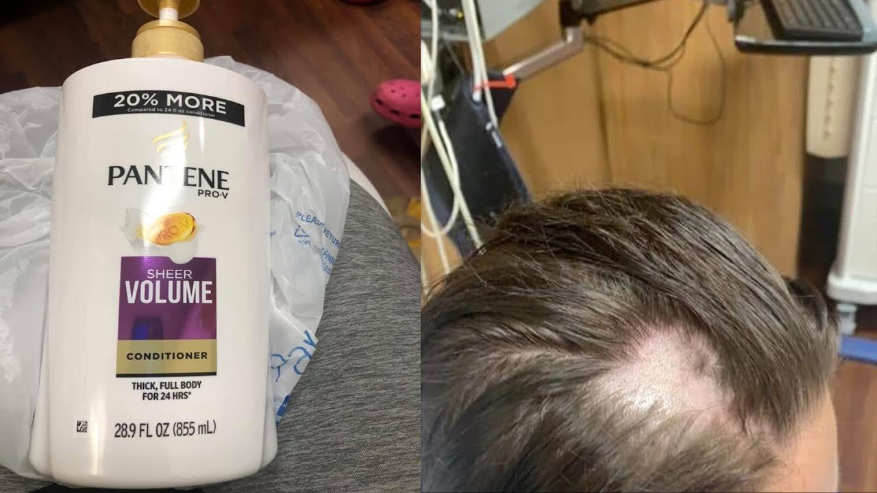 Girl Goes Bald After Someone Puts Nair In Shampoo At Walmart Youtube