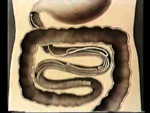 Зоология: Ленточные черви