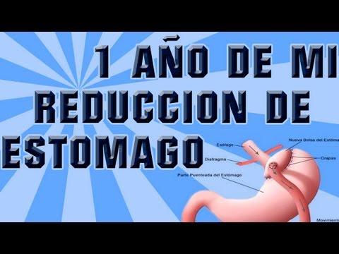 1 año de mi reducción de estomago (bypass gástrico) - YouTube