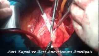 Aort Kapak ve Aort Anevrizması Ameliyatı -  Op.Dr. Mahmut Akyıldız