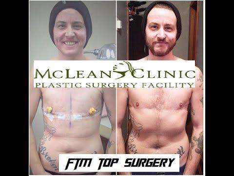 Top Surgery @The McLean Clinic Q&A