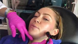 Microneedling Treatment with Brandi Cyrus