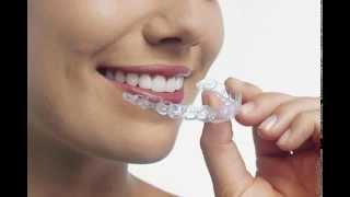 Инвизилайн в стоматологии клиники Оксфорд Медикал в Киеве(, 2014-05-30T15:04:18.000Z)
