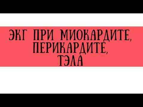 ЭКГ при миокардите, перикардите и ТЭЛА - meduniver.com