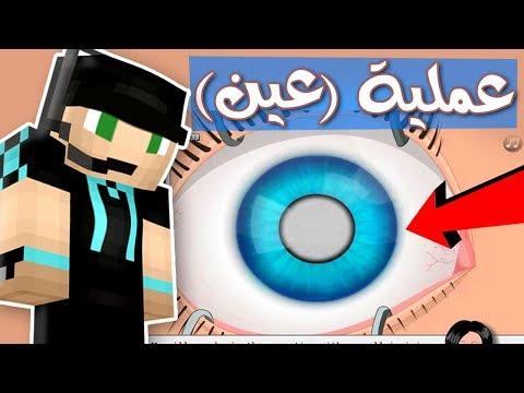 هل ينجح الدكتور فيصل في أكبر عملية عيون ؟!! 💉