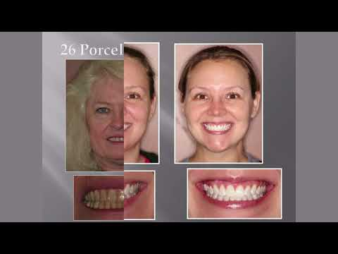 how-much-does-cosmetic-dentistry-cost?-|-orlando-cosmetic-dentist