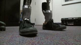 The $50,000 bionic leg