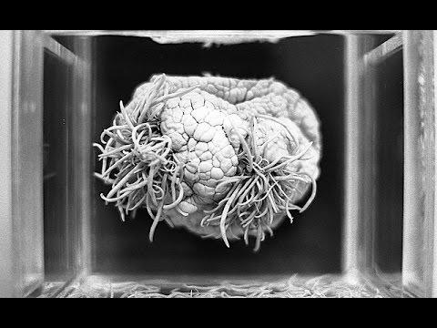 posible parásito en el cerebro